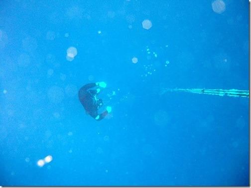 素潜り漁中に発症した脳型減圧症の 1 例(日本神経学会様HP掲載の論文より)